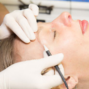 Superior Skin - Electrolysis in Wellesley