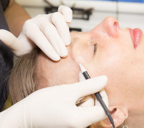 electrolysis skin care